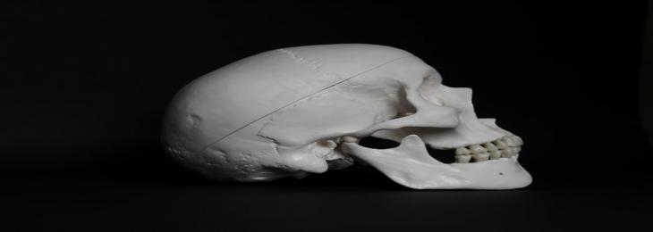 Skull Could Be an Unexpected Source of Immunity of the Brain