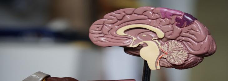 Novel Therapy For Glioblastoma brain cancer displays positive outcomes