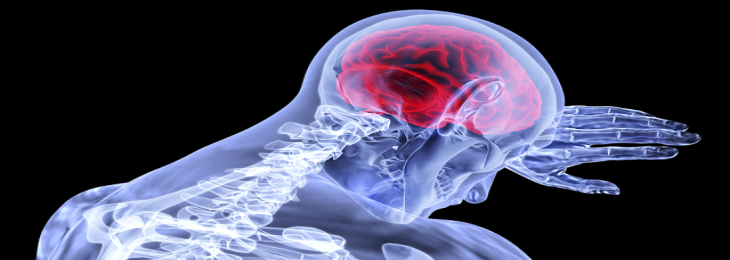 Combination Therapy Helps Reduce Risk of Stroke and Heart Attack